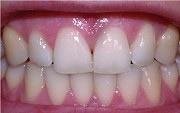 sci-nice_teeth[1]