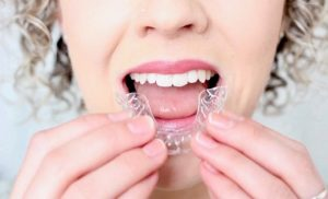Fast clear adult braces